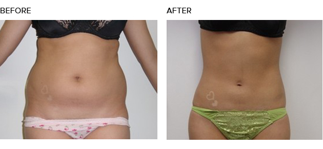 Lipo Cavitation How Does This Procedure Work
