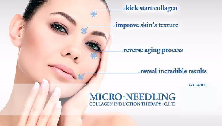 micro-needling-chic-la-vie