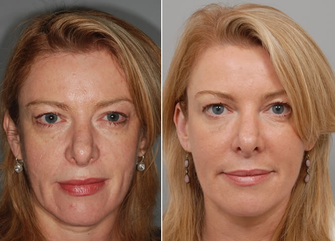 Micro-needling-before-and-after