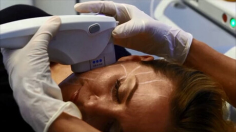 ultherapy-procedure-skin-lifting-treatment