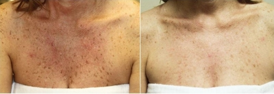 chemical-peels-before-after