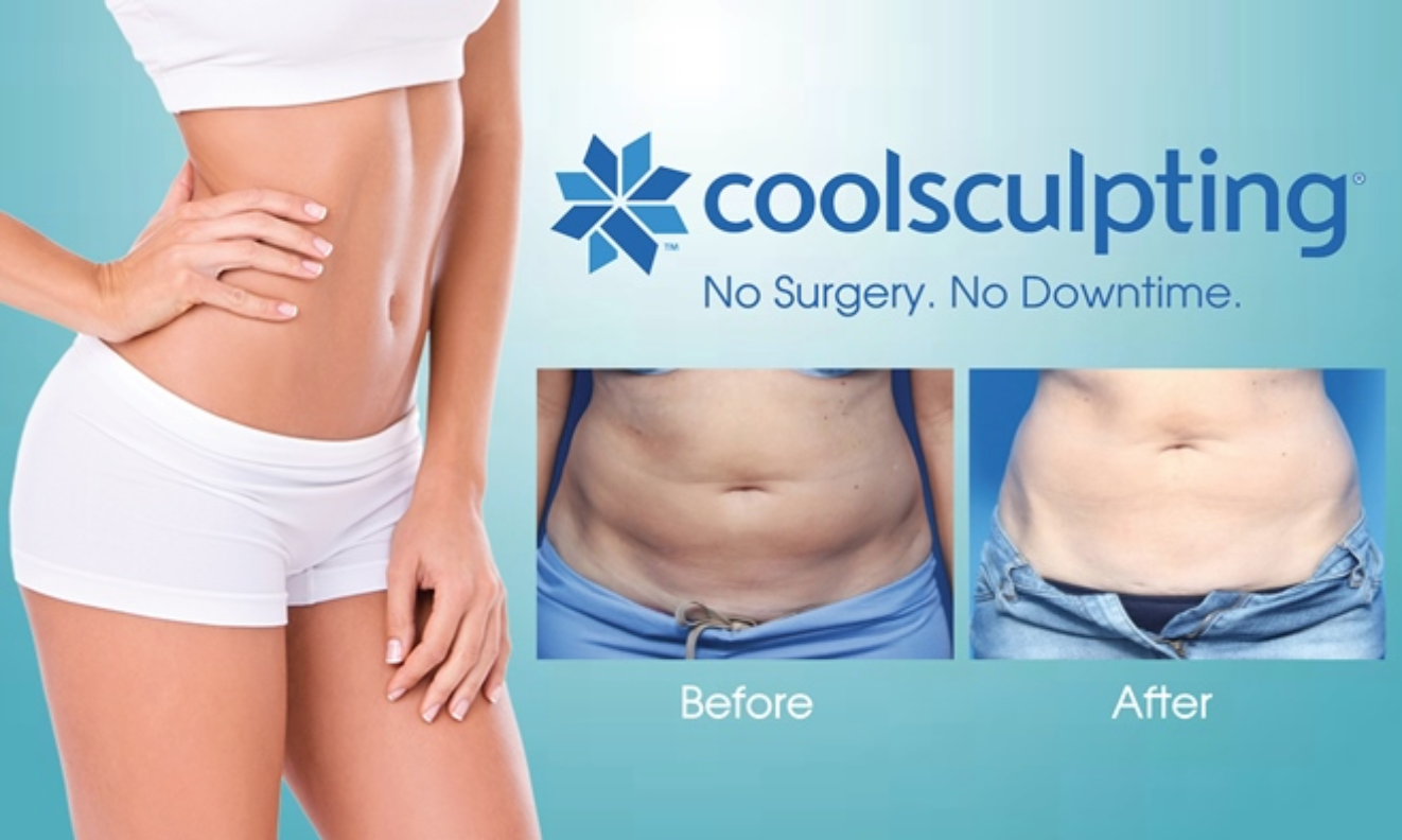 Cool Sculpting Logo Image