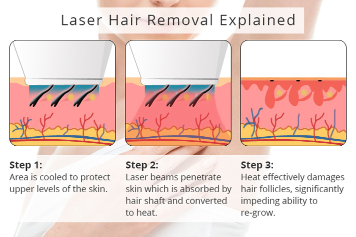 laser hair removal explained
